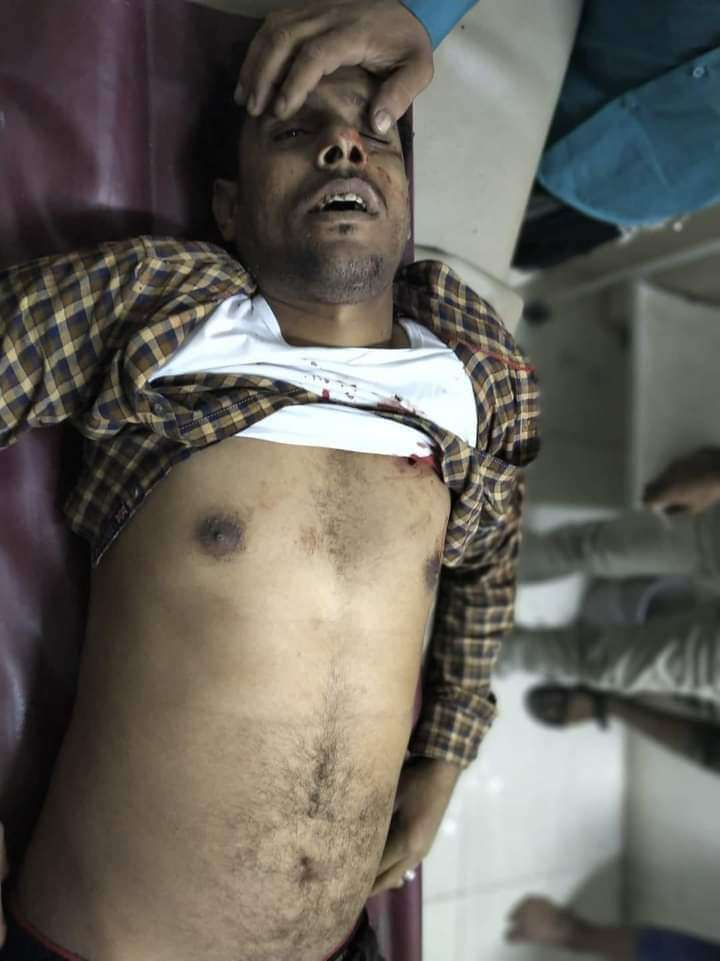 عاجل : مقتل شاب في تعز (صورة )
