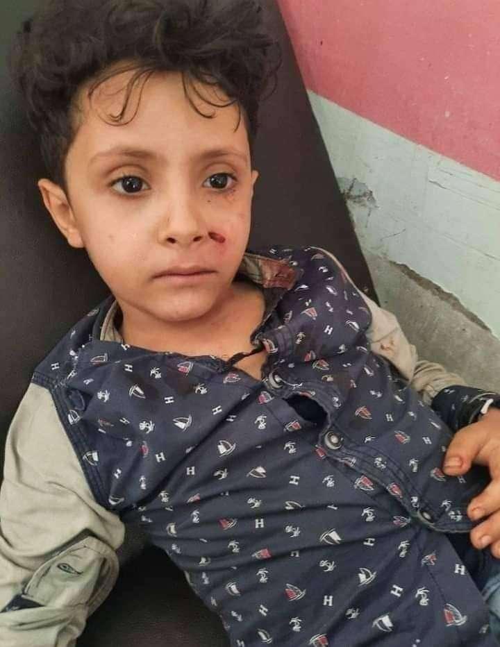 تعرض نجل إعلامية يمنية لمحاولة اختطاف في تعز (صور)