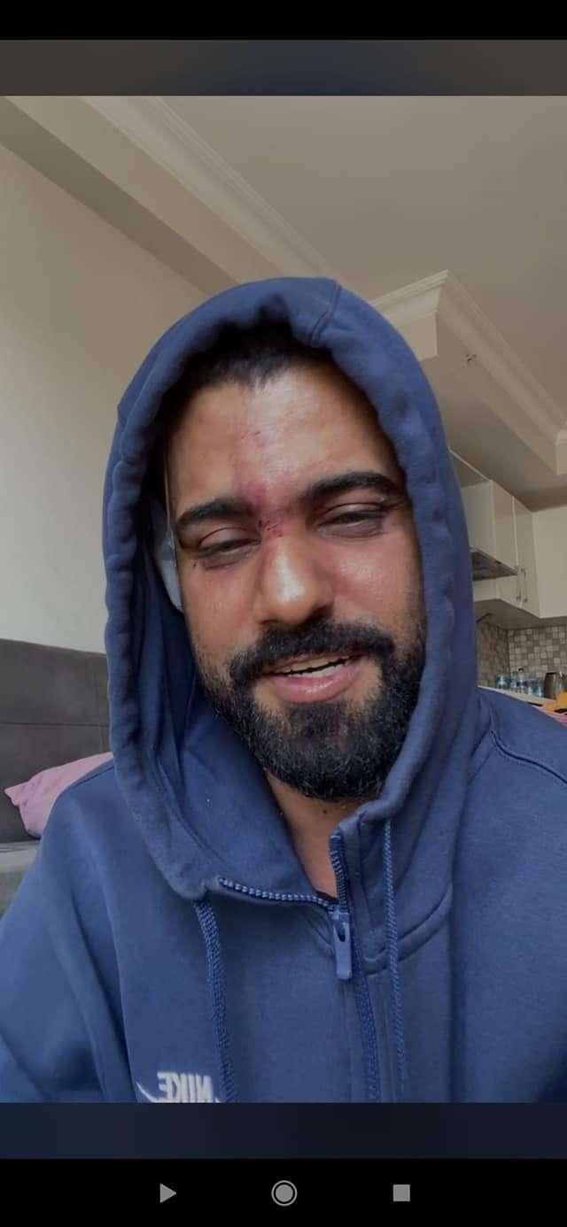 صحفي موال للانتقالي يتهم توكل كرمان بالتسبب بالاعتداء على عدنان الخضر