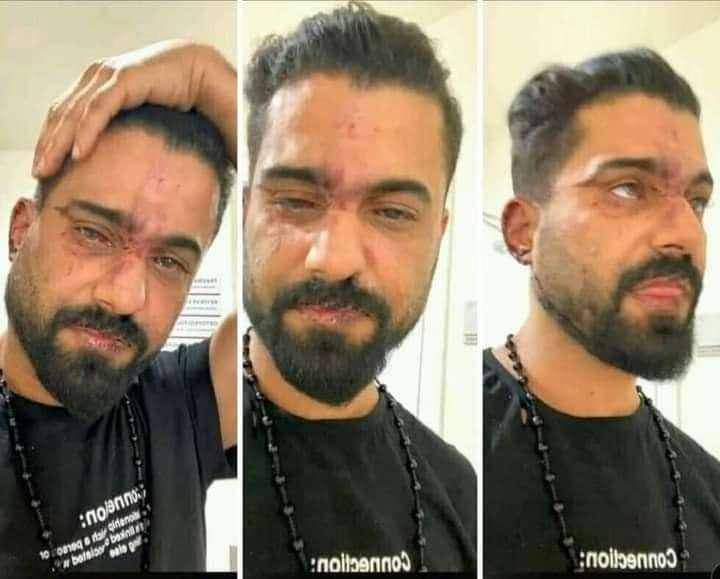 يسران المقطري يوجه رسالة للفنان العدني عدنان الخضر عقب تعرضه للاعتداء من قبل الشرطة التركية